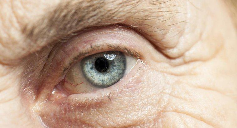 Înnorarea cataractei obiectivului. Ce se întâmplă după operație? Ce face ochii tulburi